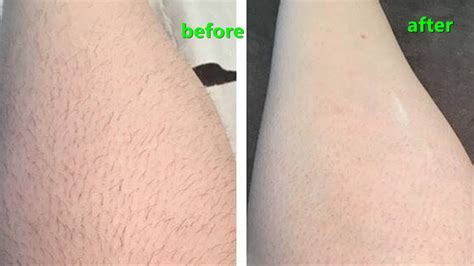 Remove The Unwanted Hair With Baking Soda Natural remedies