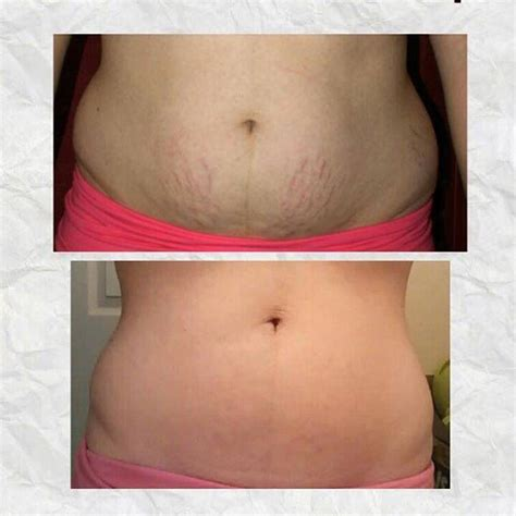 Wow look at these amazing results from these wraps that