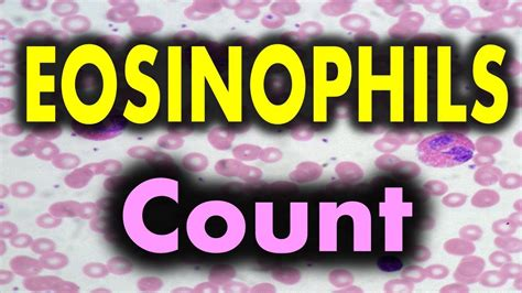 Eosinophils high in blood test means - YouTube