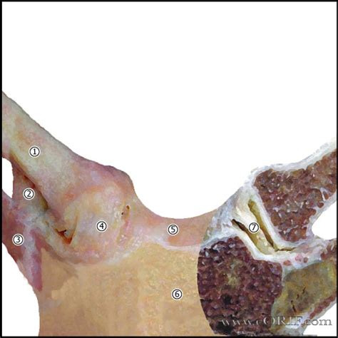 Sternoclavicular Joint Osteoarthritis M19